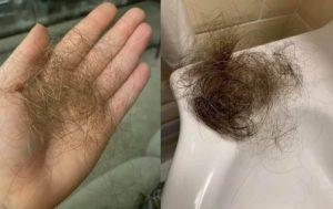 волосы выпали коронавирус